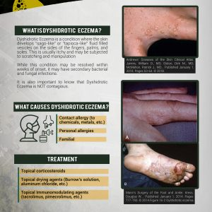 Fact Sheet: Dyshidrotic Eczema